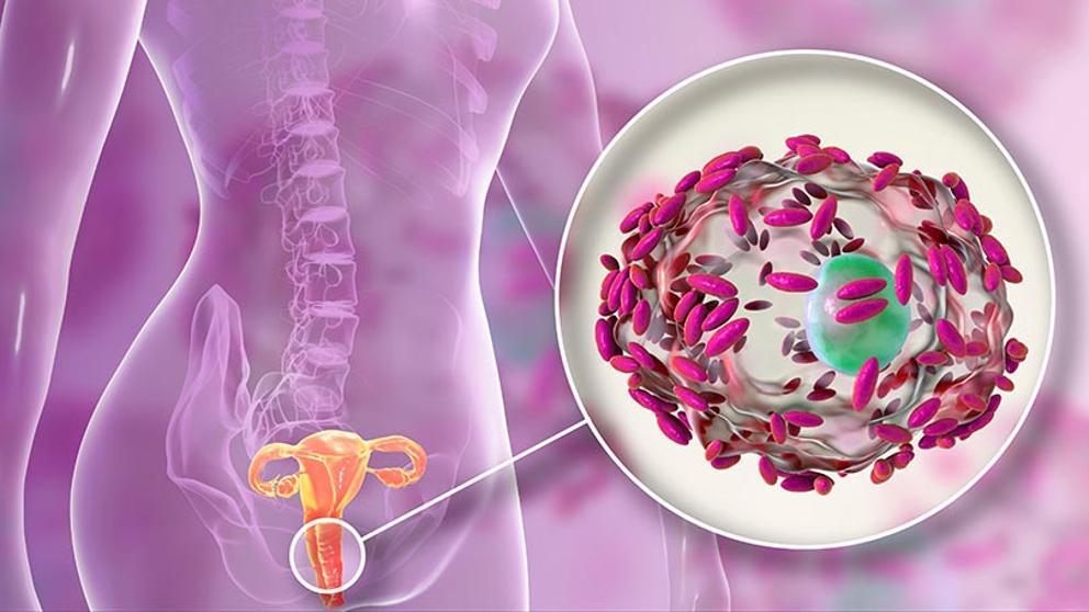 Tratamiento vaginitis bacteriana